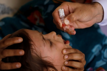 Polio vaccine drops are administered to a child at a civil dispensary in Peshawar, Pakistan on July 11. -Reuters photo