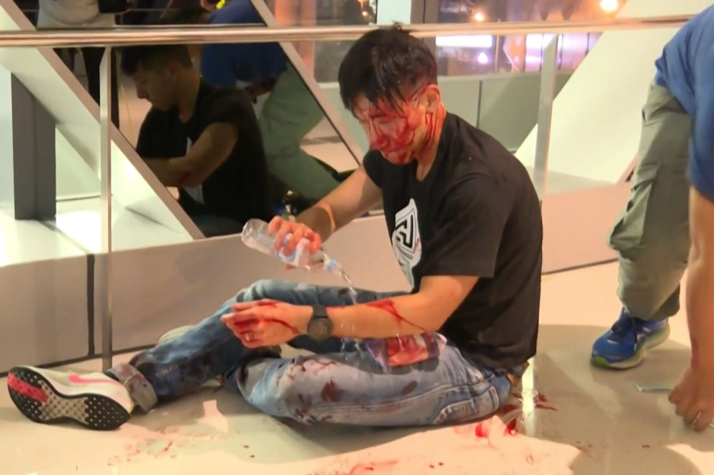 This frame grab taken from video recorded by Hong Kong broadcaster Now TV on Sunday and released to AFP on July 22 shows former sportscaster for local television TVB, Ryan Lau Chun Kong, bleeding after a mob of suspected triad gangsters attacked pro-democracy protesters returning from a demonstration earlier in the day, at Yuen Long train station in Hong Kong. -AFP photo