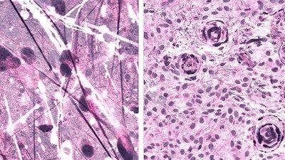 Stimulated Raman histologic images of diffuse astrocytoma (left) and meningioma (right). — Courtesy photo